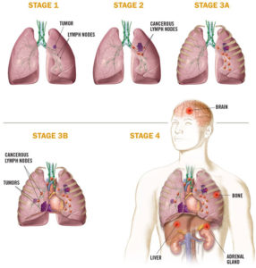 Illustration of Treatment For Stage 2 Lung Cancer?