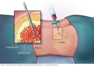 Illustration of Should A Biopsy Be Done On A Lump In The Arm That Doesn't Heal?