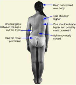 Illustration of Frequent Tightness And Fatigue Easily In People With Scoliosis Who Have Had Heart Leak Surgery?
