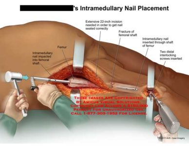 Illustration of Can Pen Placement Be Done On A Fracture That Has Been 10 Years?
