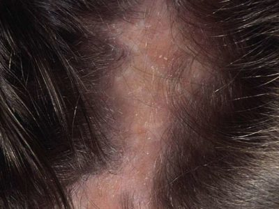 Illustration of Cause Dandruff Is Wet And Smelly On The Head?