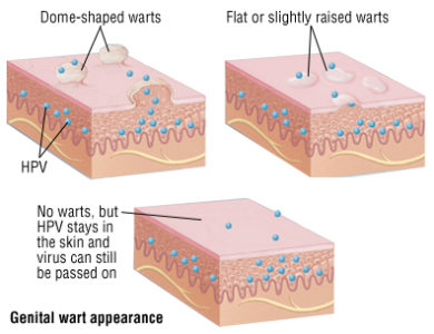 Illustration of Treatment Of Genital Warts Without Lasers Only Uses Drugs?