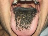 Black Spots On The Tip Of The Tongue Accompanied By The Tongue Feels Bitter?