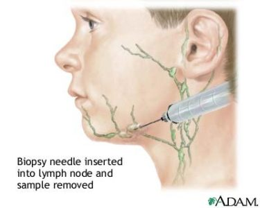 Illustration of Use Of Anesthesia For Biopsy Of The Neck Gland?