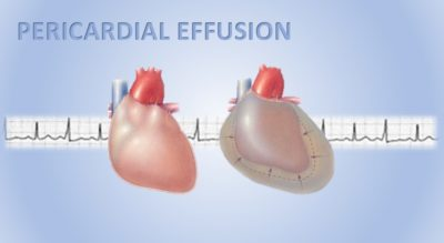 Illustration of The Cause Of The Emergence Of Fluid In The Heart In People With Hypertension?