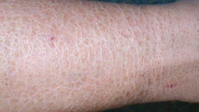 Illustration of The Skin Becomes Sensitive, Dry, Easily Peels And Redness?