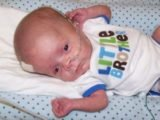 Depression In The Child's Head After Hydrocephalus Surgery?