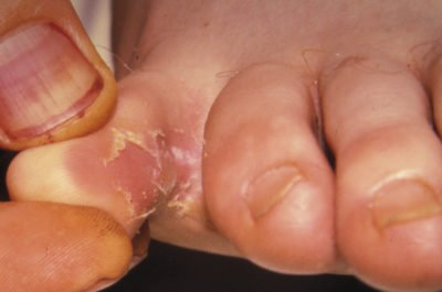 Illustration of Itchy, Suppurating And Painful Skin Of The Toes?