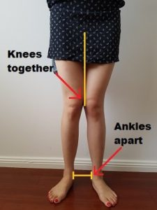 Illustration of The Knee Cannot Be Bent In The 71-year-old?