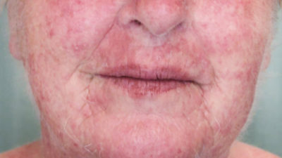 Illustration of Watery Bumps Suddenly Appeared On The Face?