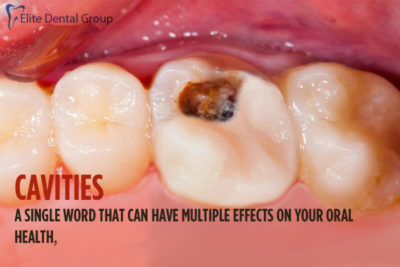 Illustration of Effects Of Cavities?