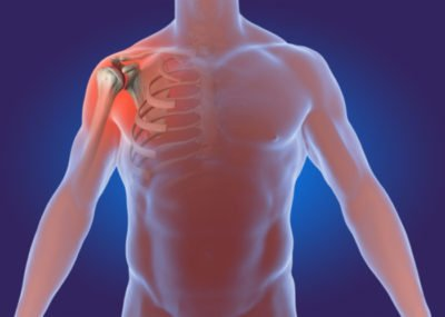 Illustration of Pain And Rheumatic Pain On The Shoulders To The Back That Does Not Go Away?