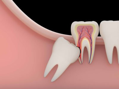 Illustration of Overcoming Wisdom Teeth That Grow Pointy Until It Feels Pain When Eating?