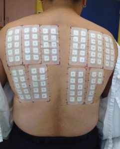 Illustration of How Does The Procedure Undergo An Allergy Test Due To The Symptoms Of Shortness Of Breath?