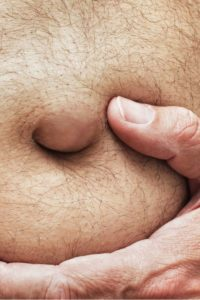 Illustration of The Cause Of A Lump Under The Stomach Such As An Enlarged Mole?