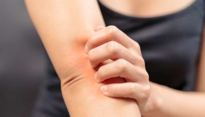 Illustration of How To Deal With Itching On Thin And Sensitive Skin?