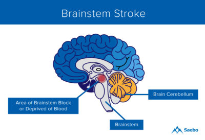 Illustration of When Can A Hemorrhagic Stroke Patient In The Brain Stem Return To Consciousness?