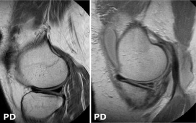 Illustration of Explanation Of The Results Of An MRI Tear In The Knee Meniscus?