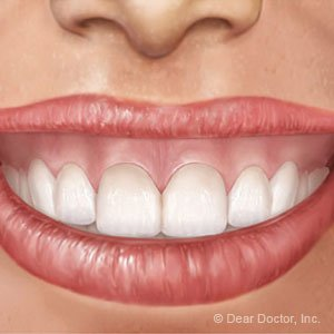 Illustration of How To Deal With Gummy Smile While Treating Nerve Cavities?