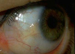 Illustration of Red Eyes And Yellow Spots On The Eyeball?