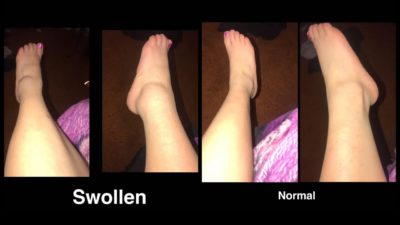 Illustration of Sprained Leg While 8 Months Pregnant?