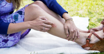Illustration of What To Do If A Yeast Infection Spreads To Your Thighs?