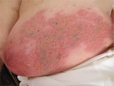 Illustration of Management Of Shingles That Spreads To The Breast?