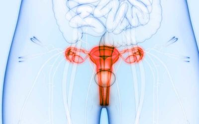 Illustration of Abstinence To Eat After Cervical Cancer Surgery?