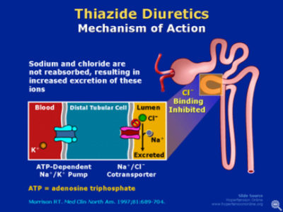 Illustration of How To Deal With The Use Of Thiazide Drugs In People With Acute Kidney Failure?