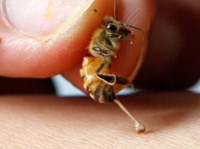 Illustration of Handling When Exposed To Bee Bites?