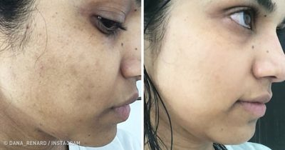 Illustration of How To Deal With Black Spots On The Face?