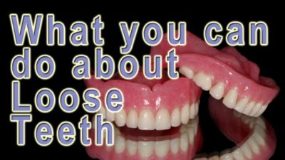 Illustration of Can You Shake Your Brittle Teeth And Pull Yourself?