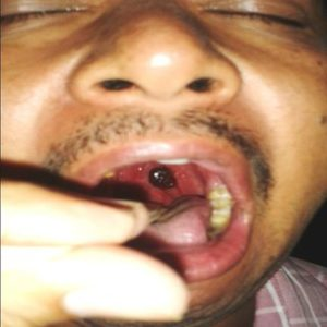 Illustration of Spotting In The Enlarged Tonsils Accompanied By Bleeding?
