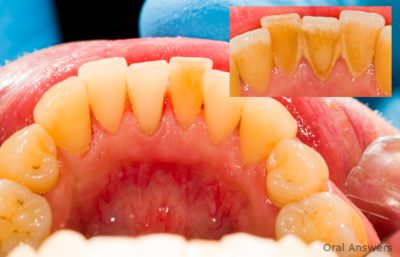 Illustration of The Thread Feels Dislodged After Removing The Upper Teeth?