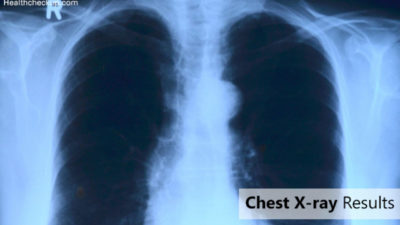 Illustration of Chest X-ray Examination Results?