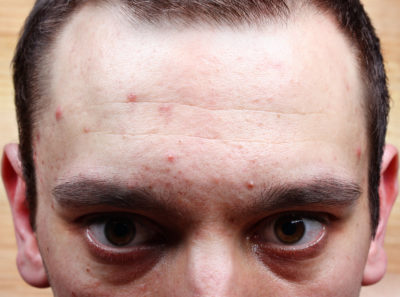 Illustration of Pimples On Back, Head And Forehead Due To Drugs?