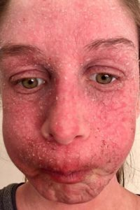 Illustration of Handling Of Red Face Like Burns After The Use Of Cosmetics?