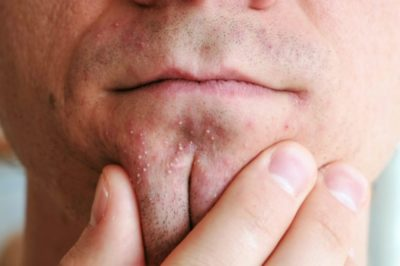 Illustration of How To Deal With Facial Acne With Pus?