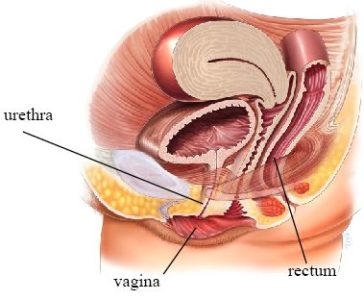 Illustration of Urinary Tract Infections After Removing The Catheter Accompanied By Vaginal Discharge Such As Milk Mucus?