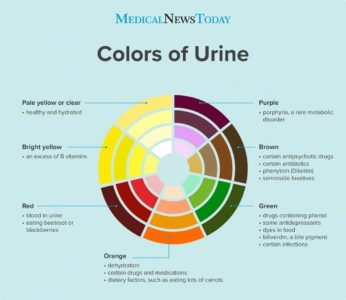 Illustration of Brown Urine After Severe Vomiting The Previous Day?