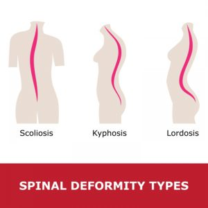 Illustration of Treatment Of Bone Pain Due To Lordosis?