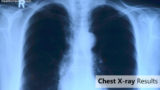 Chest X-ray Examination Results?