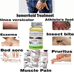 Illustration of Natural Treatment For Swollen And Painful Wounds?
