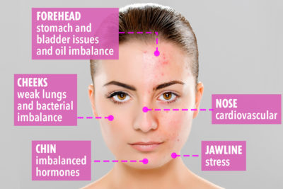 Illustration of Are Pimples On The Right Cheek A Sign Of Lung Disorders?