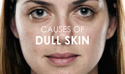 Illustration of Causes And Ways To Deal With Dull Faces Accompanied By Black Spots?