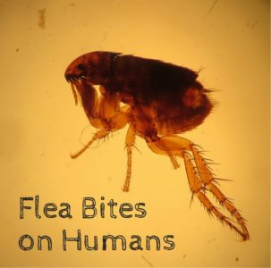 Illustration of Handling For Itching Due To Water Fleas That Often Recur?