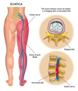 Illustration of Right Back Pain That Radiates To The Feet?