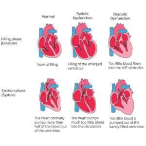 Illustration of How To Deal With Decreased Heart Function And Heart Thickening?