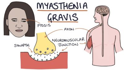 Illustration of How To Deal With Myasthenia Gravis?