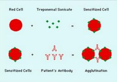 Illustration of Explanation Of The Results Of The TPHA (Treponemal Palidum Hemagglutination Assay) Examination?